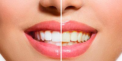Imagen comparativa dientes blanqueamiento dental Almería