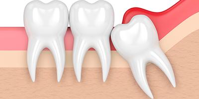 Imagen dientes cirugía oral lAlmería