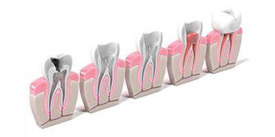 Imagen sección dientes endodoncia Almería