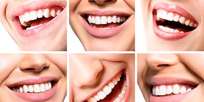 Imagen dientes estética dental Almería
