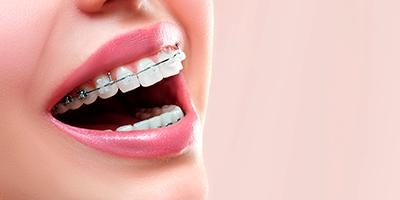 Imagen dientes con ortodoncia Almería