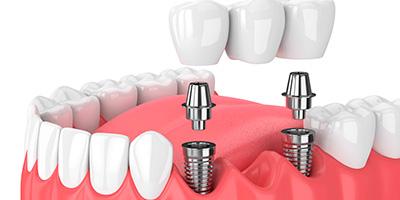 Imagen de prótesis dentales Almería